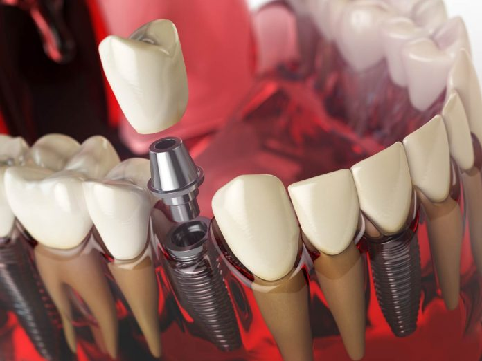 Tooth implant in the model human teeth, gums and denturas